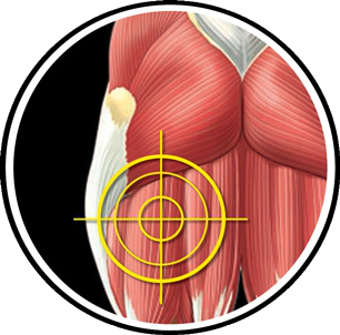Hamstring Muscles: Functional Anatomy Guide