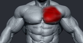 pectoralis muscle tear