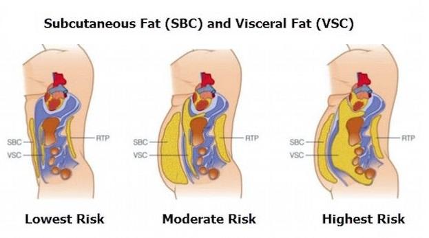 visceral fat health risks