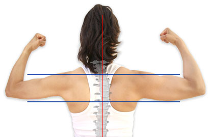 Examples of muscle imbalance
