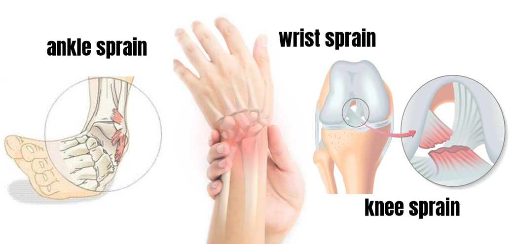 ligament tear injury: knee, wrist, ankle