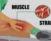 Muscle Strains: Symptoms, Causes, and Treatment