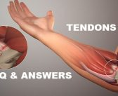 Meet your tendons: 12 FAQ and answers