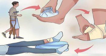 Treating injuries using RICE method