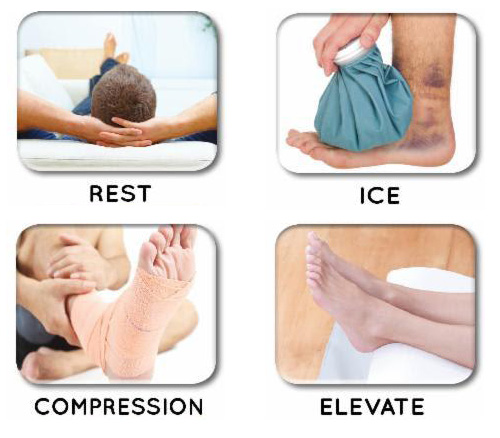 R.I.C.E method for treating injuries