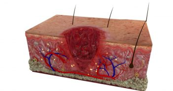 stages of soft tissue healing