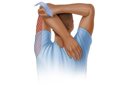 triceps stretch rehabilitation exercise